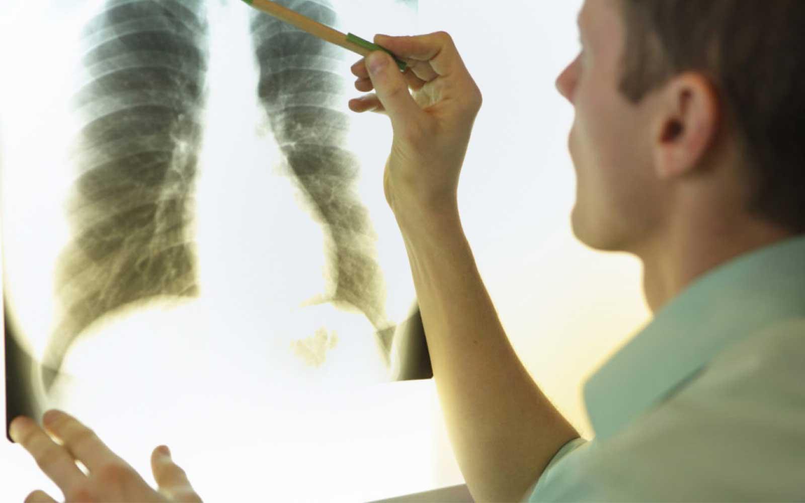 Dr. Arthur Vianna | Câncer De Pulmão